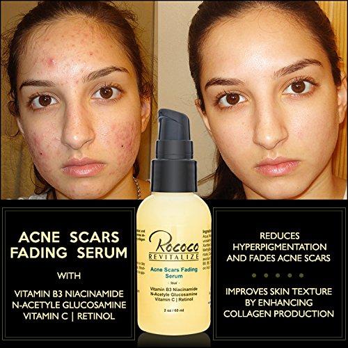 Rococo Revitalize Acne Scars Fading Serum